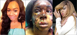 Naomi Oni accused of pouring acid on self to gain fame