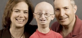 17-year-old boy dies of Progeria, a rare old age disease